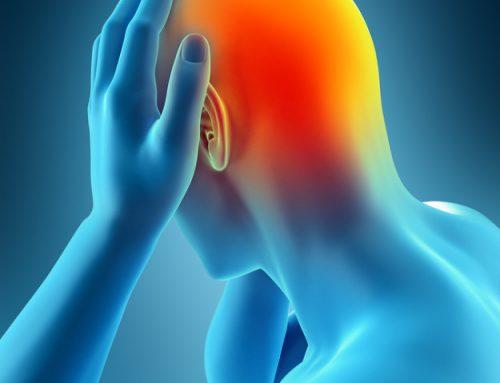 Eficacia de la acupuntura en el tratamiento y profilaxis de la migraña