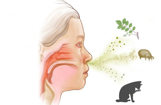 Rinitis alérgica - Eficacia y seguridad en su tratamiento con acupuntura