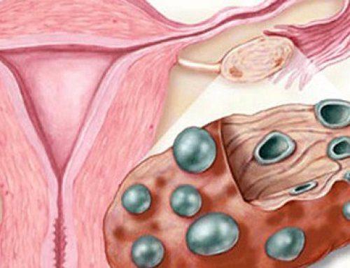 Eficacia de la acupuntura en el tratamiento de pacientes con ovario poliquístico en procesos de fecundación in vitro