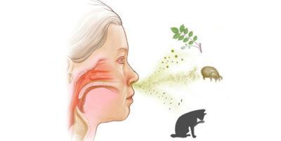 Eficacia de la acupuntura en el tratamiento de la rinitis alérgica