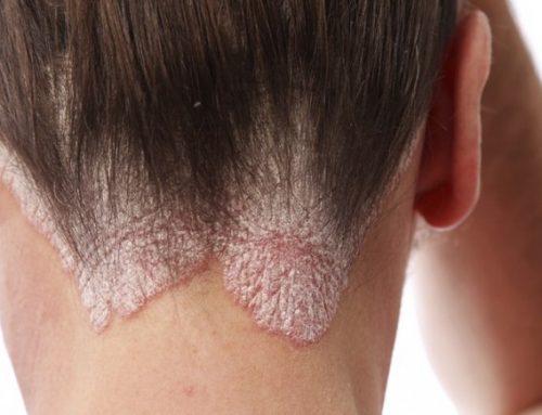Eficacia de la acupuntura en el tratamiento de la psoriasis