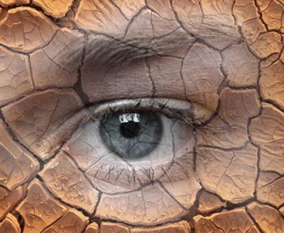 Eficacia de la acupuntura en el tratamiento del síndrome del ojo seco