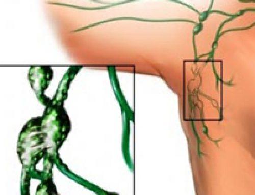 Eficacia del tratamiento con acupuntura del linfedema asociado a cáncer de mama