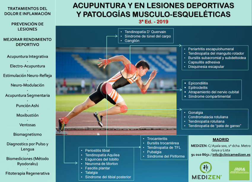 Curso de Acupuntura en Lesiones Deportivas y Patologías Musculo-Esqueléticas. Febrero 2019