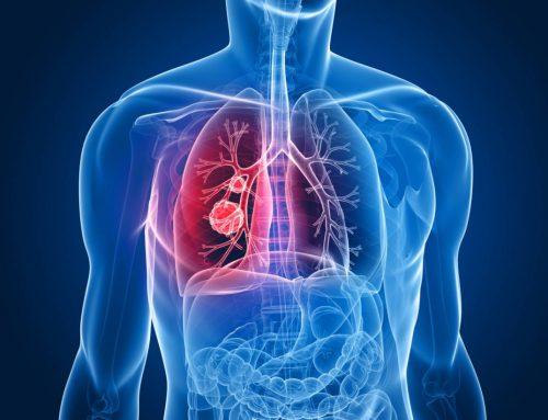 Eficacia de la acupuntura en el tratamiento de la Enfermedad Pulmonar Obstructiva Crónica (EPOC)