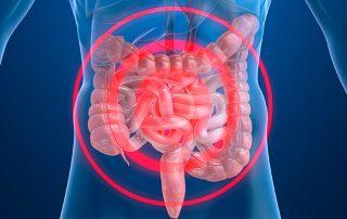 Tratamiento Enfermedad Crohn Acupuntura