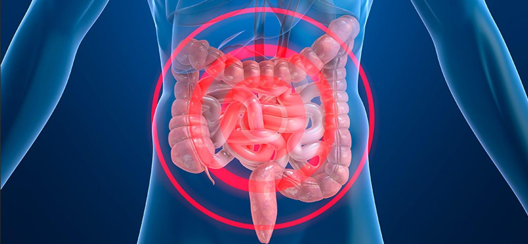 Eficacia y seguridad de la acupuntura en el tratamiento de la Enfermedad de Crohn