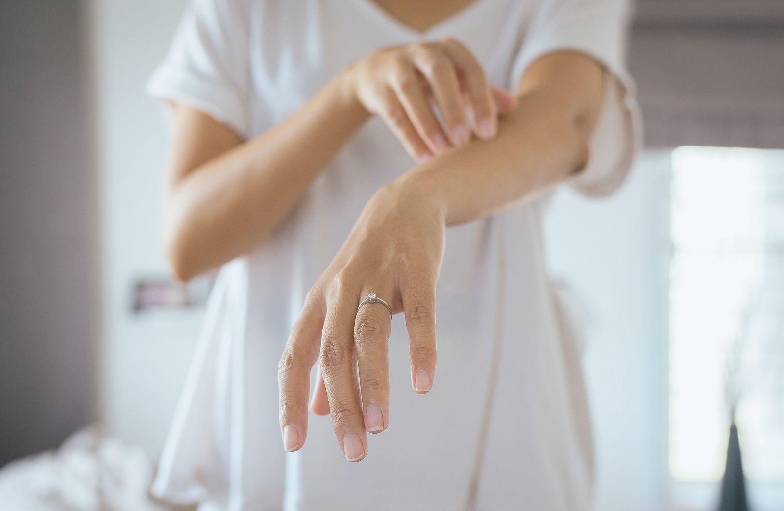 Eficacia de la acupuntura en el tratamiento de la dermatitis atópica
