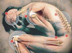 Eficacia de la acupuntura en el tratamiento de la Enfermedad por Reflujo Gatroesofágico