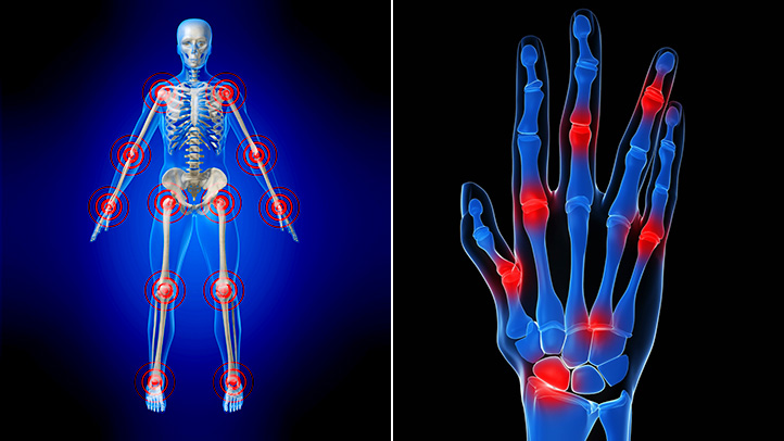Eficacia y seguridad de la acupuntura en el tratamiento de la Artritis Reumatoide