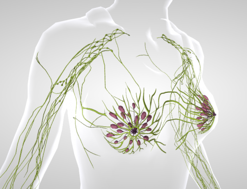Eficacia de la acupuntura en el tratamiento del linfedema asociado al cáncer de mama