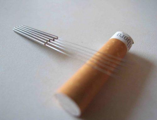 Eficacia y seguridad de la acupuntura en el tratamiento del tabaquismo