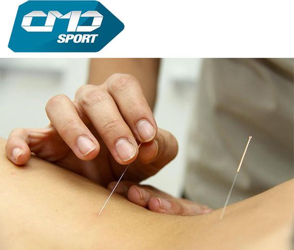 Los beneficios de la acupuntura en el running