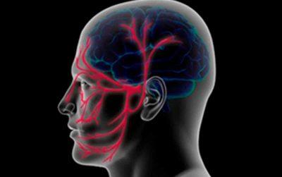 Eficacia y seguridad de la acupuntura en el tratamiento de la Neuralgia del Trigémino