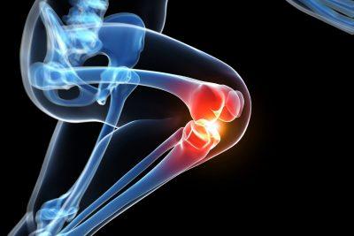 Eficacia y seguridad de la acupuntura en el tratamiento de la osteoartritis de rodilla